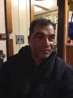 Injured dairy farmworker Upstate NY